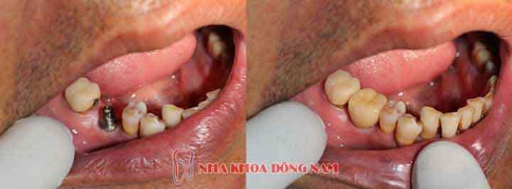 (*Lưu ý: Tùy từng tình trạng bệnh nhân khác nhau sẽ có kết quả bọc răng sứ khác nhau)