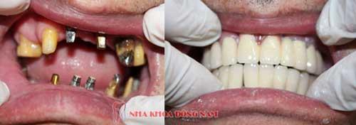 cấy ghép implant 2 hàm răng mất 2