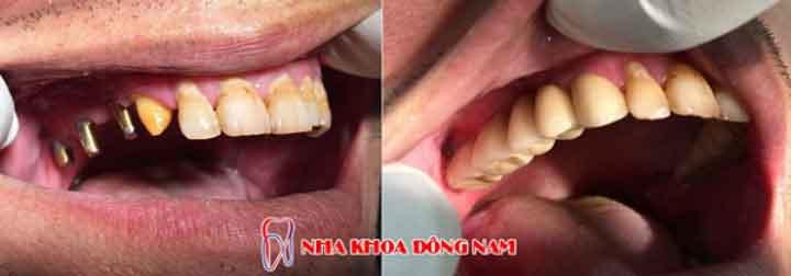 cấy ghép implant 4 răng nhai hàm trên