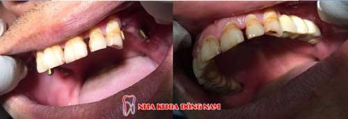cấy ghép implant 4 răng nhai hàm trên 2