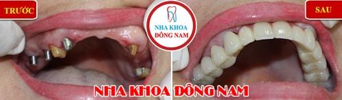 Trồng răng Implant và Phục hình răng sứ hàm trên