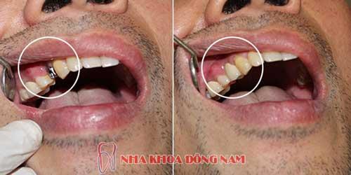 cấy ghép răng implant hàm trên