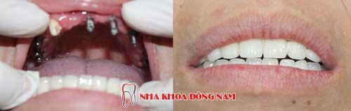 cấy ghép răng 9 trụ implant hàm trên