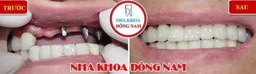 Cắm ghép răng implant và phục hình răng sứ cho trường hợp mất răng hàm trên