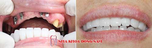 cấy ghép răng implant nguyên hàm trên -27062016
