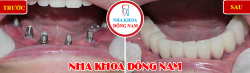 cắm ghép implant toàn hàm dưới và phục hình răng sứ trên implant
