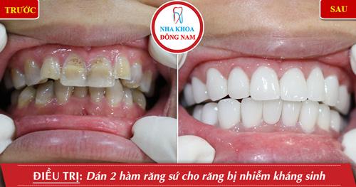 Dán 2 hàm răng sứ cho răng bị nhiễm kháng sinh