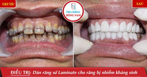 Dán 2 hàm răng sứ cho răng nhiễm kháng sinh