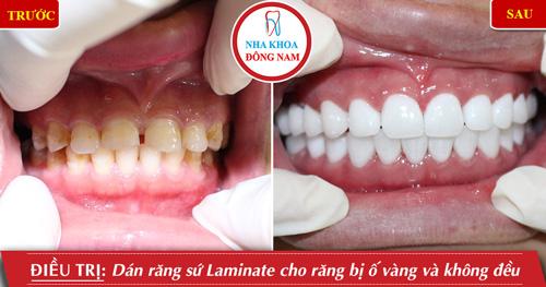 Dán 2 hàm răng sứ cho răng bị ố vàng và không đều