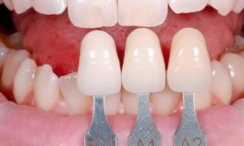 giải pháp bọc răng sứ