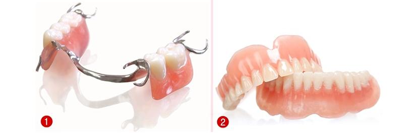 hàm răng giả tháo lắp -1