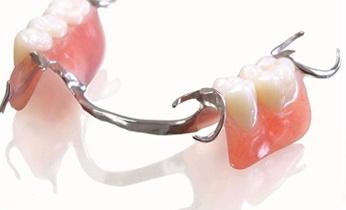 hàm răng giả tháo lắp
