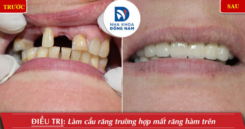 trồng răng sứ cho trường hợp mất răng cửa hàm trên