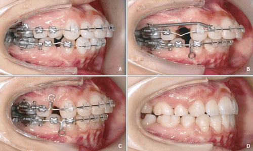 Chỉnh nha niềng răng tại nha khoa Đông Nam