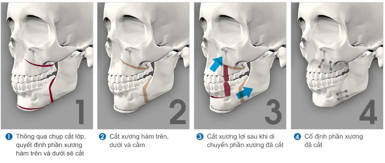 Phẫu thuật cắt xương hàm chửa hô món