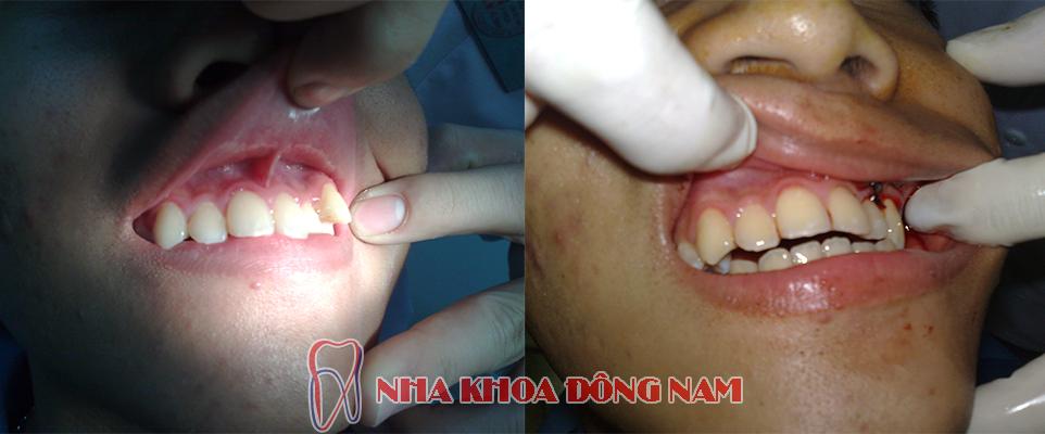 phẫu thuật chỉnh hình răng bị lệch