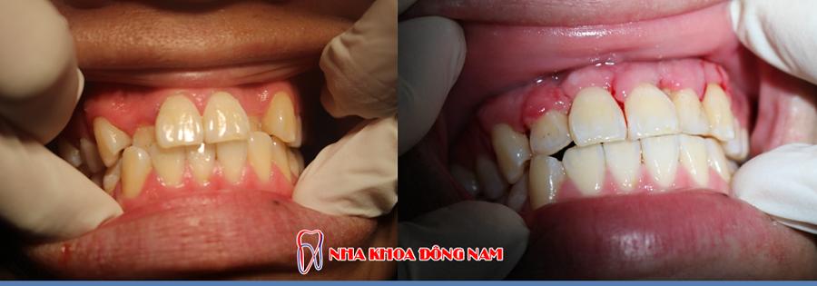 phẫu thuật chình hình răng không đều