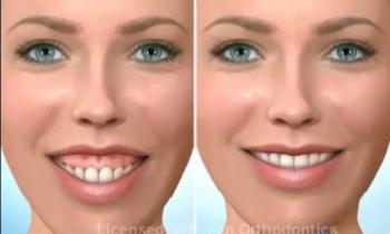 phẫu thuật hàm hô cười hở lợi
