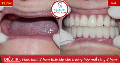 Phục hình 2 hàm tháo lắp cho trường hợp mất răng 2 hàm
