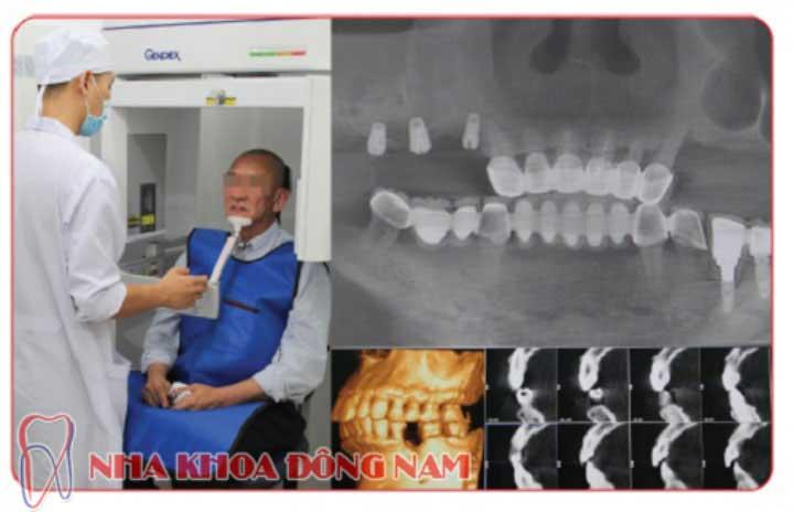 quy trình cấy ghép implant 4