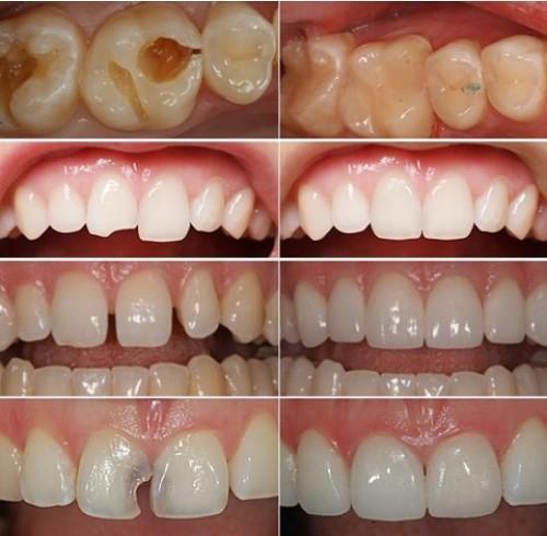 các trường hợp trám răng