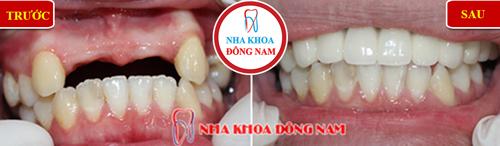 Trồng 4 răng sứ răng cửa cho trường hợp mất răng