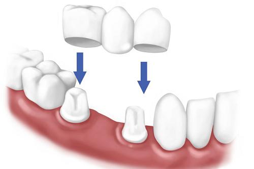trồng răng sứ -2