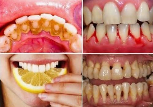 48 tuổi tự nhiên bị rung răng là do đâu 1