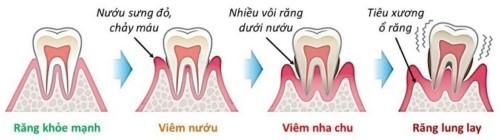 48 tuổi tự nhiên bị rung răng là do đâu 2