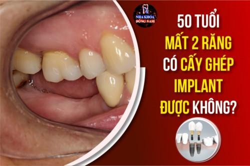50 tuổi bị mất 2 răng có cấy ghép implant được không