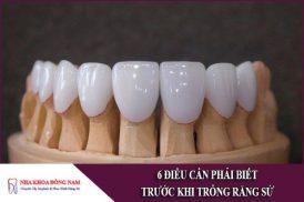 6 Điều Cần Phải Biết Trước Khi Trồng Răng Sứ