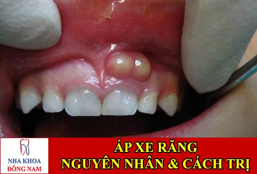 nguyên nhân và cách điều trị áp xe răng