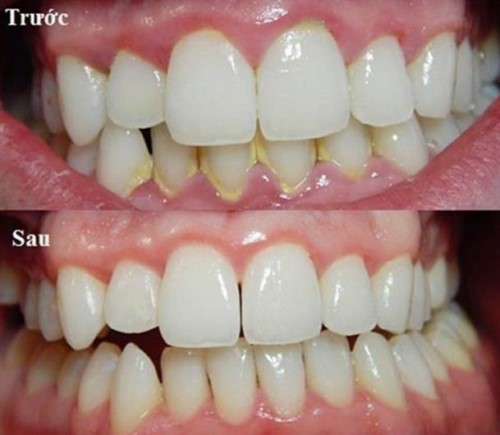 cạo vôi răng ngăn ngừa bệnh nha chu