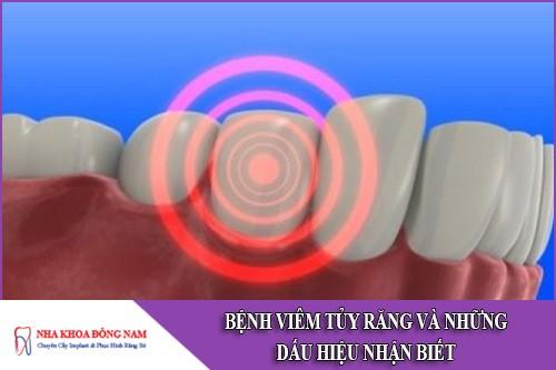 bệnh viêm tủy răng và những dấu hiệu nhận biết