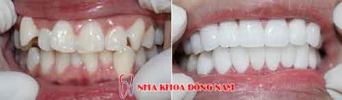bọc sứ 2 hàm răng mọc lộn xộn - 01122016