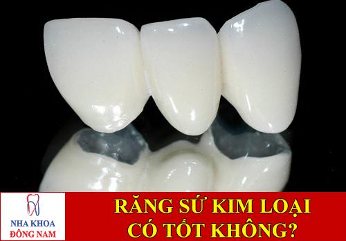 bọc răng sứ kim loại có tốt không -1
