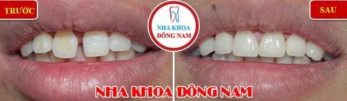 bọc sứ 2 răng cửa thưa lớn