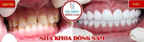 dán răng sư cho răng thưa ố vàng