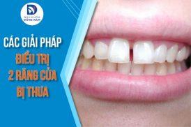 các giải pháp điều trị 2 răng cửa bị thưa
