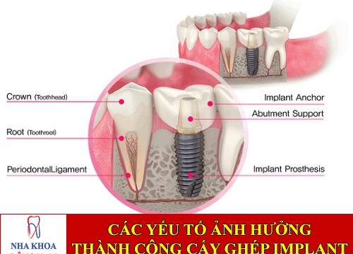 các yếu tố ảnh hưởng sự thành công cấy ghép implant -1
