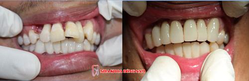 cách điều trị răng cửa bị chìa