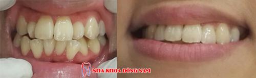 cách điều trị răng cửa bị to