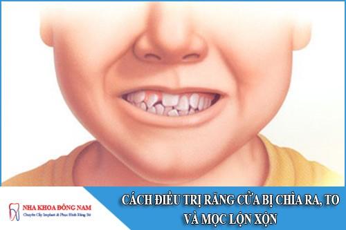 cách điều trị răng cửa bị chìa ra, to và mọc lộn xộn