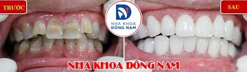 bọc sứ cho răng chìa bị nhiễm màu