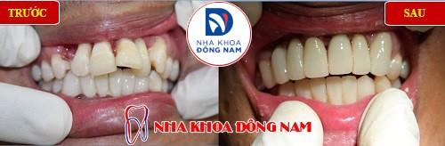 bọc sứ 6 răng hàm trên