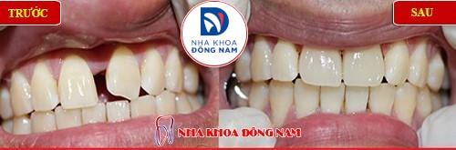bọc sứ 4 răng điều trị răng cửa to và thưa