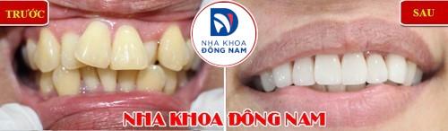 bọc sứ 6 răng hàm trên mọc lộn xộn