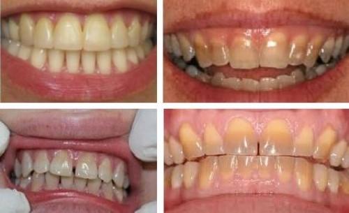 cách làm trắng răng bị nhiễm tetracyclin ố vàng