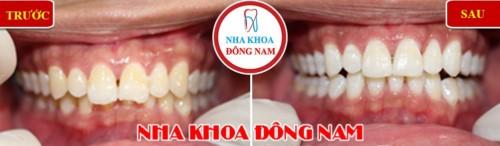 cách làm trắng răng bị nhiễm tetracycline ố vàng 1