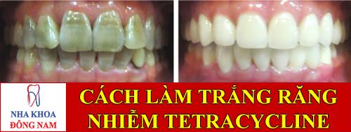 cách làm trắng răng nhiễm tetracycline -1